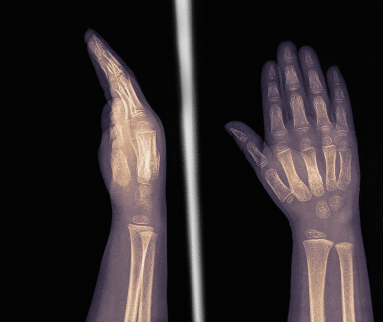 X-rays showing metacarpal fractures in hand