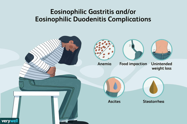 Eosinophilic Gastritis and/or Eosinophilic Duodenitis Complications