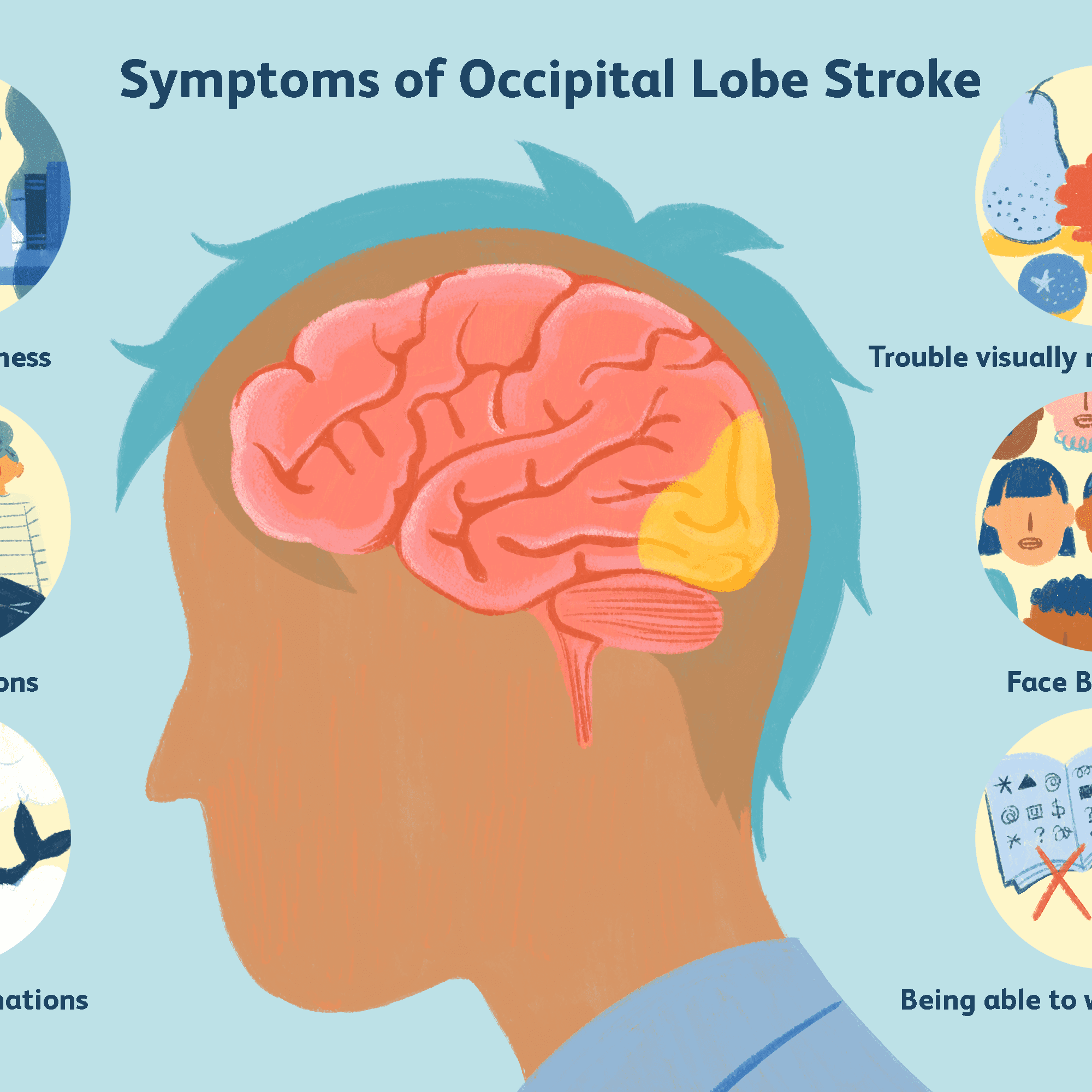 The Effects of an Occipital Lobe Stroke