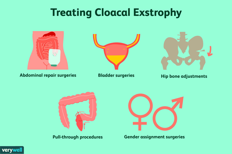 cloacal exstrophy surgeries