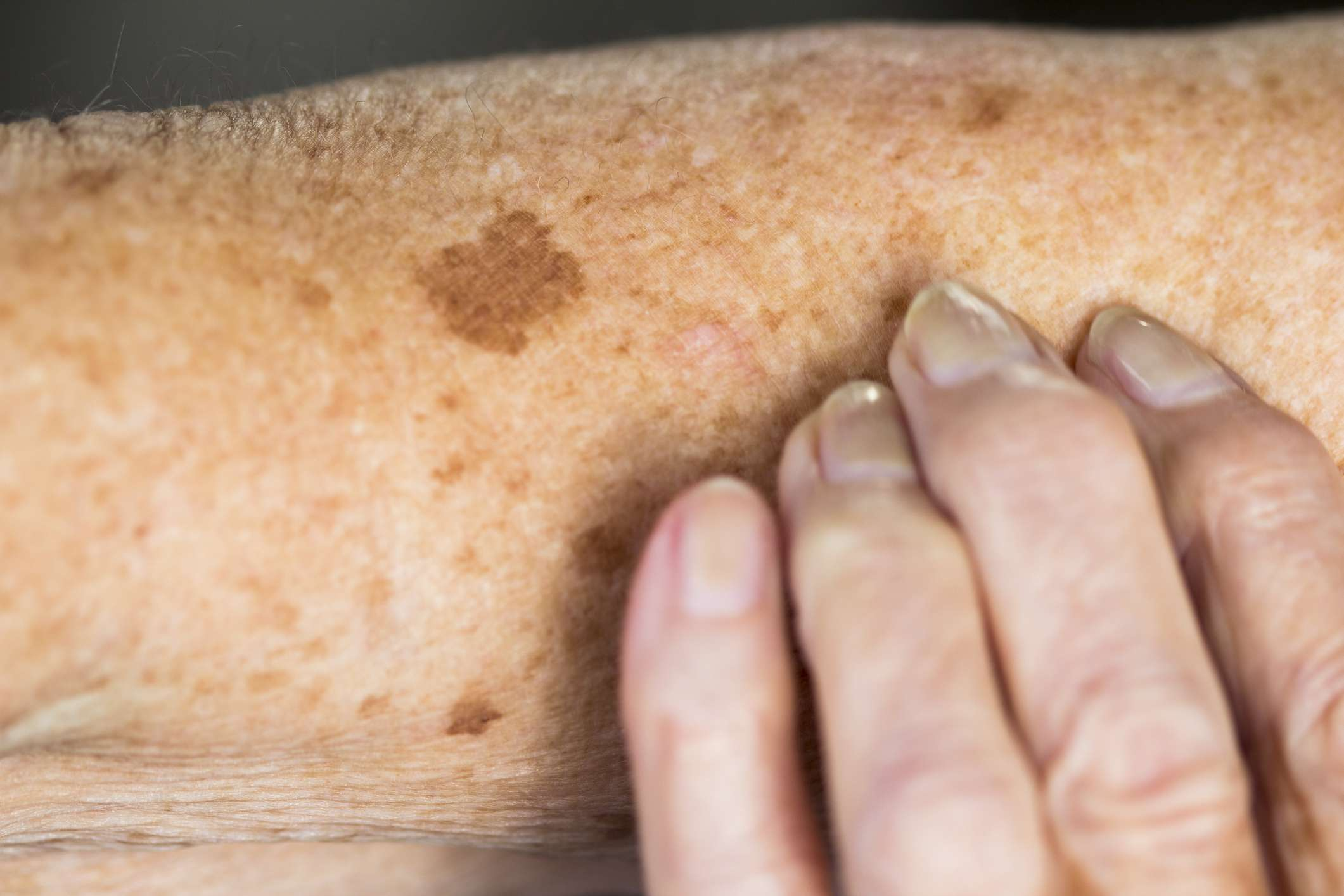 Liver spots, or age spots, on an elderly woman's skin.