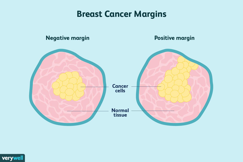 cancer margins
