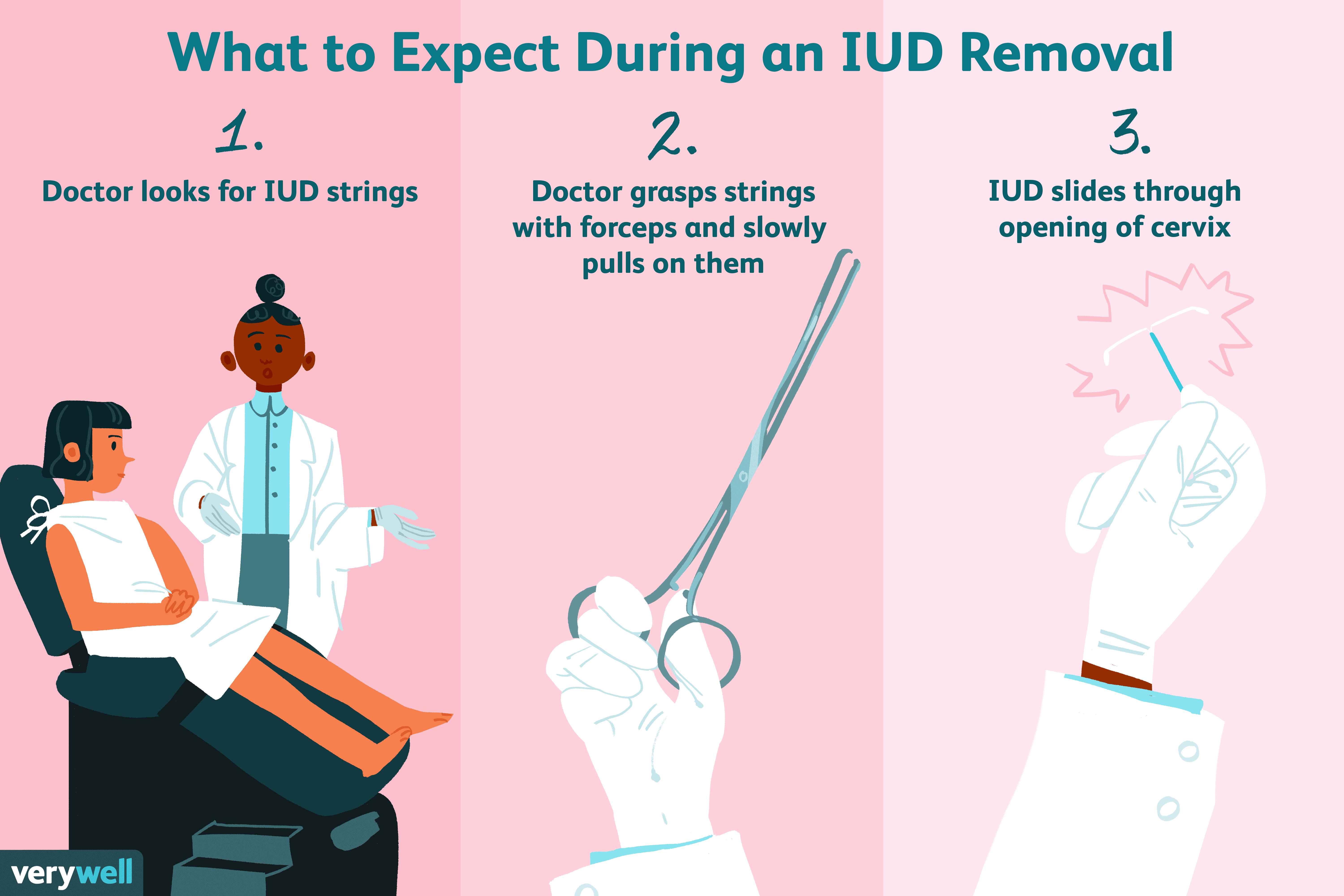 what to expect during iud removal