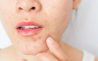 Close up of a fair-skinned person's mouth and nose, they have acne on their chin. The rest of their face is not visible.