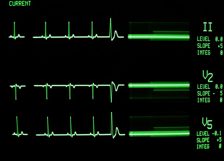 Premature Atrial Complexes (PACs) Causes and Treatment