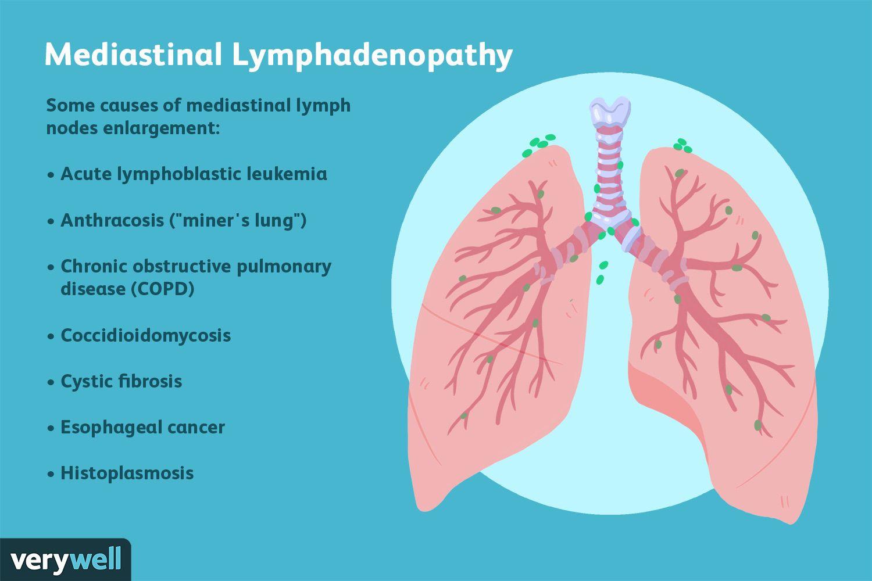 potential causes of mediastinal lymphadenopathy
