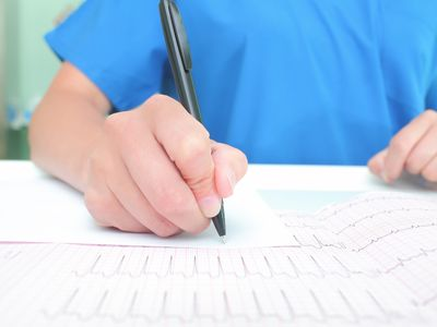 Medical experts are studying the ECG recording