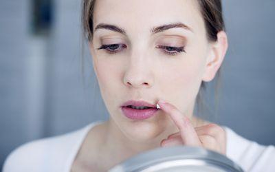 Woman applying lip ointment