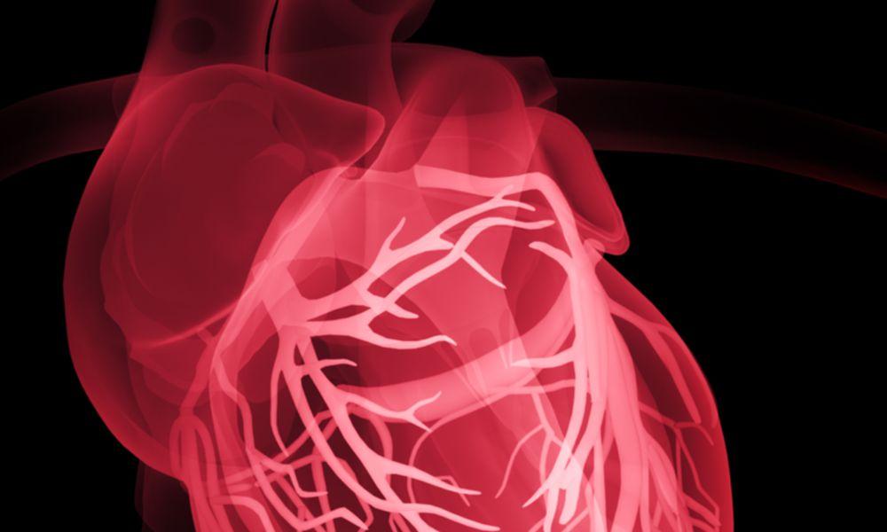 Human heart, X-ray