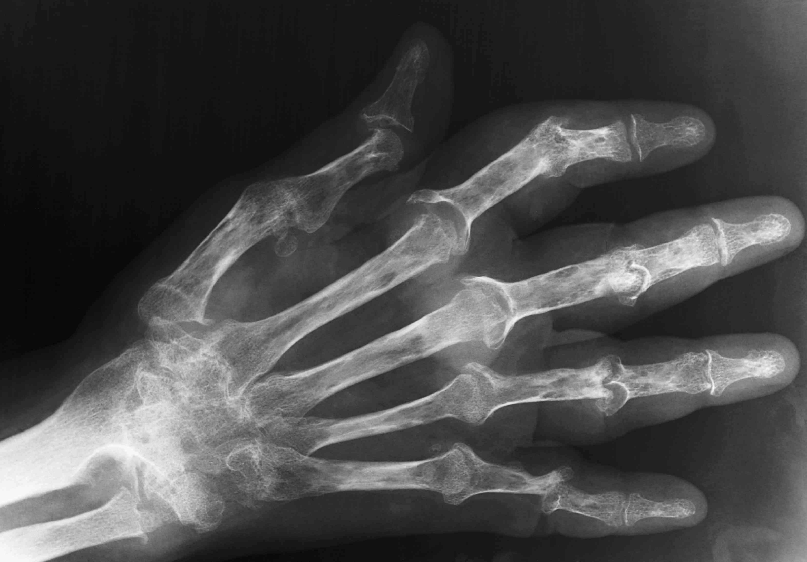 psoriatic arthritis of hands