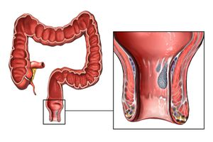 Digestive Health Diarrhea Constipation And More