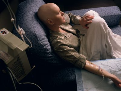 A woman receives treatment for her cancer.