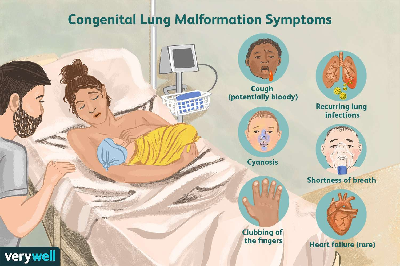 Congenital Lung Malformation Symptoms