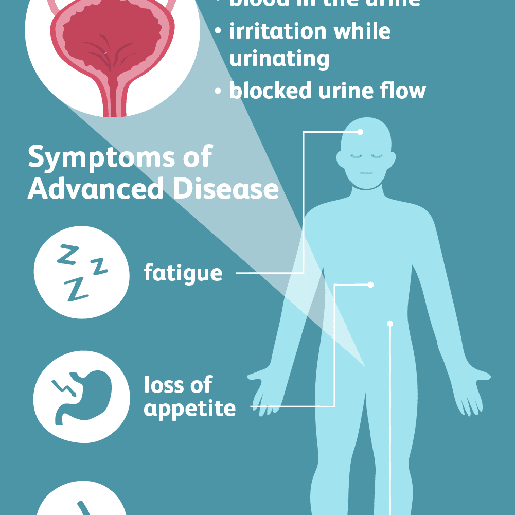 Treatment of urinary bladder papilloma, Warts bladder papilloma