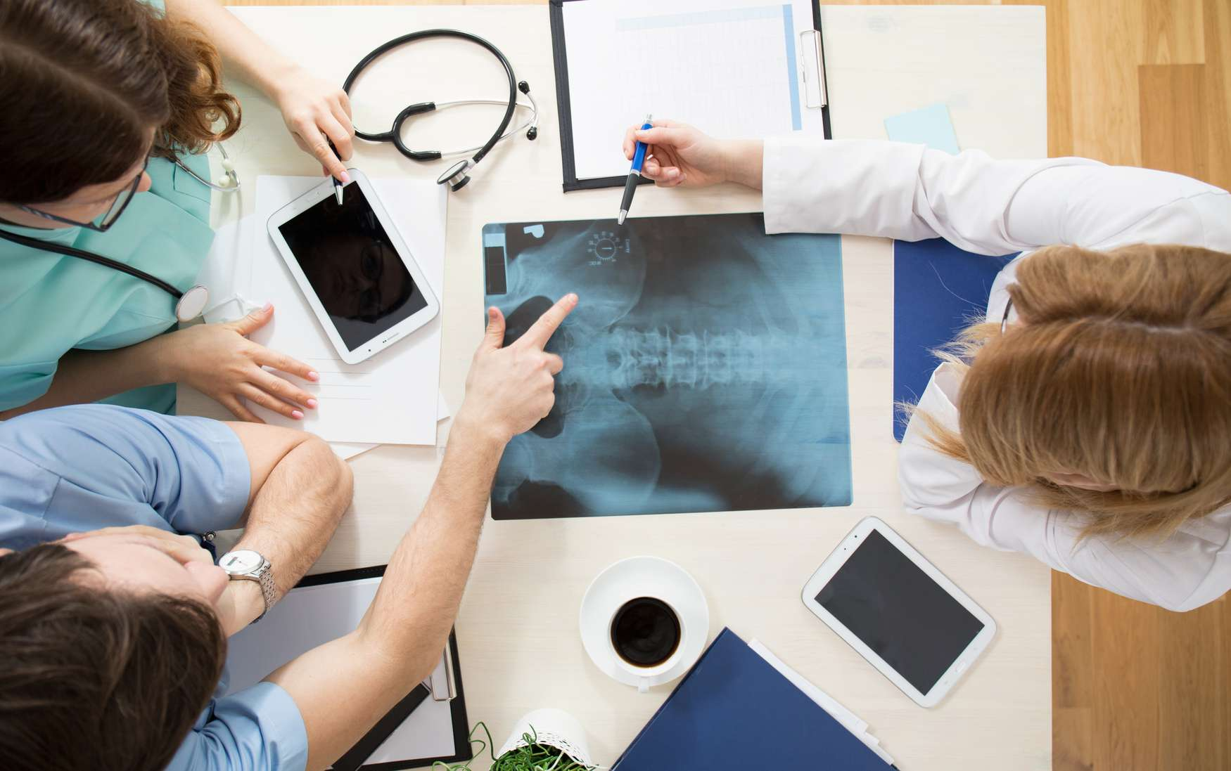 Aerial view of doctors looking for signs of osteoporosis in x-ray
