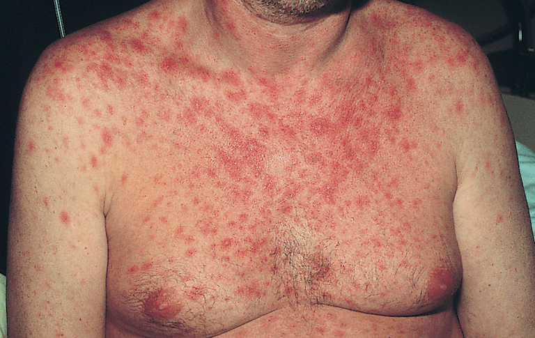Types Of Rash Associated With Hiv Infection