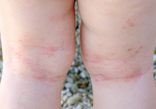 atopic dermatitis and scratches on the back of a toddler's knees