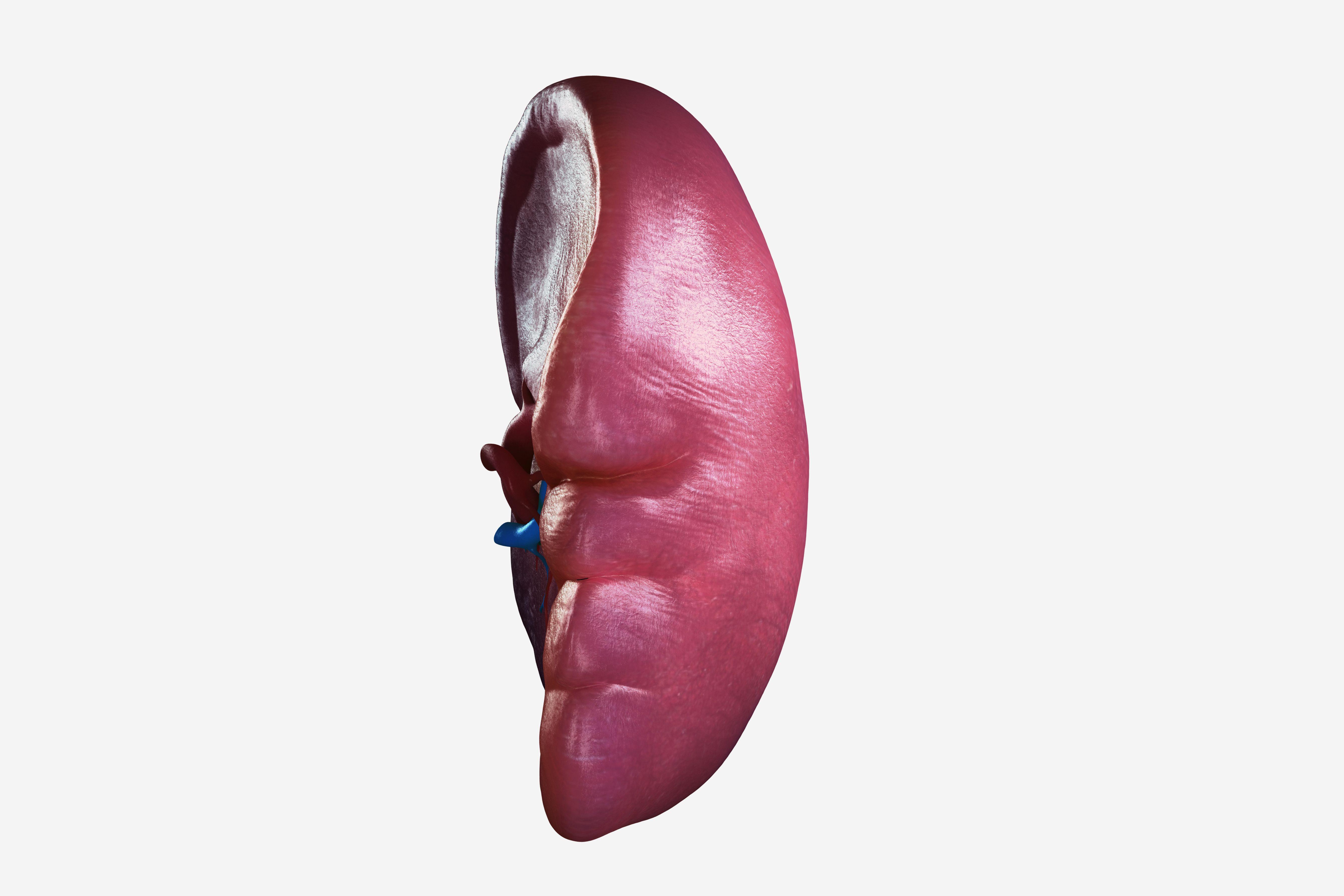 Splenectomy Is The Spleen Removal Surgery