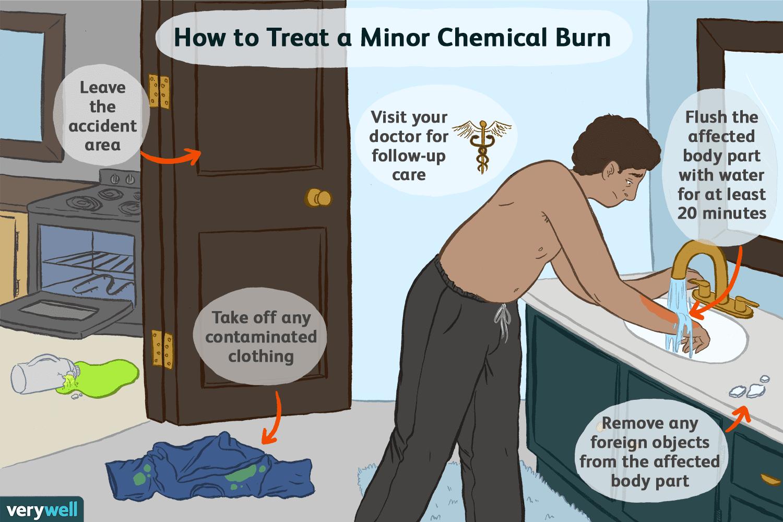 Chemical Burns: Symptoms, Causes, Diagnosis, Treatment