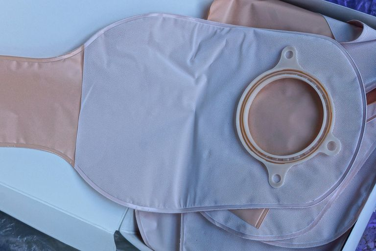 Changing Your Colostomy Pouch