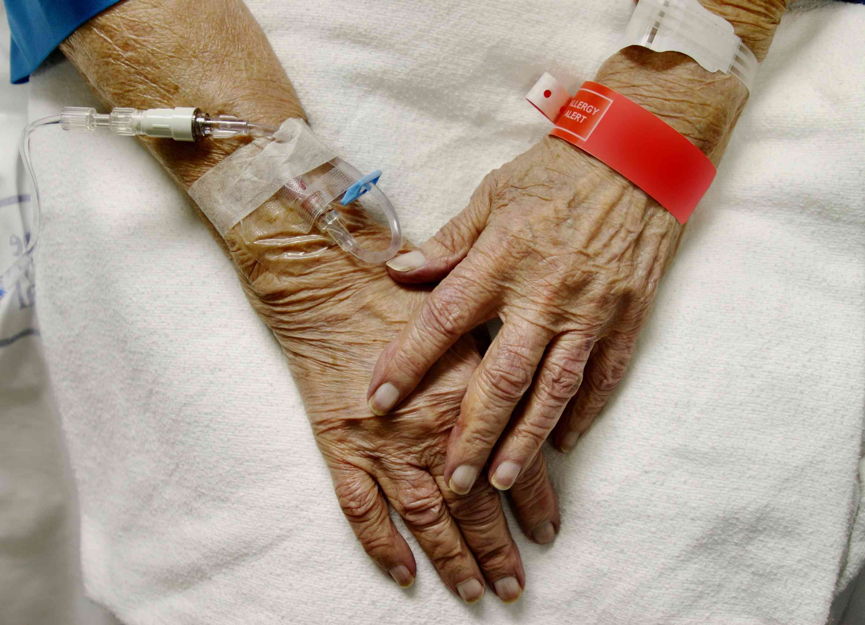 Close-up of IV in arm of patient with late stage dementia