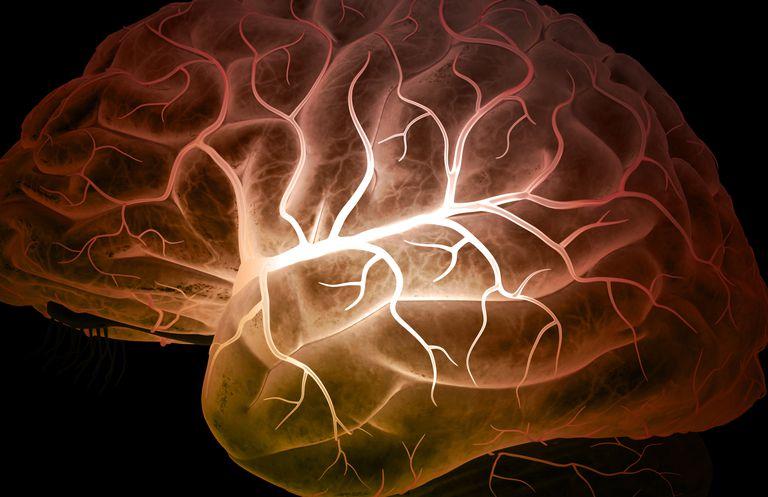 Middle Cerebral Artery Stroke