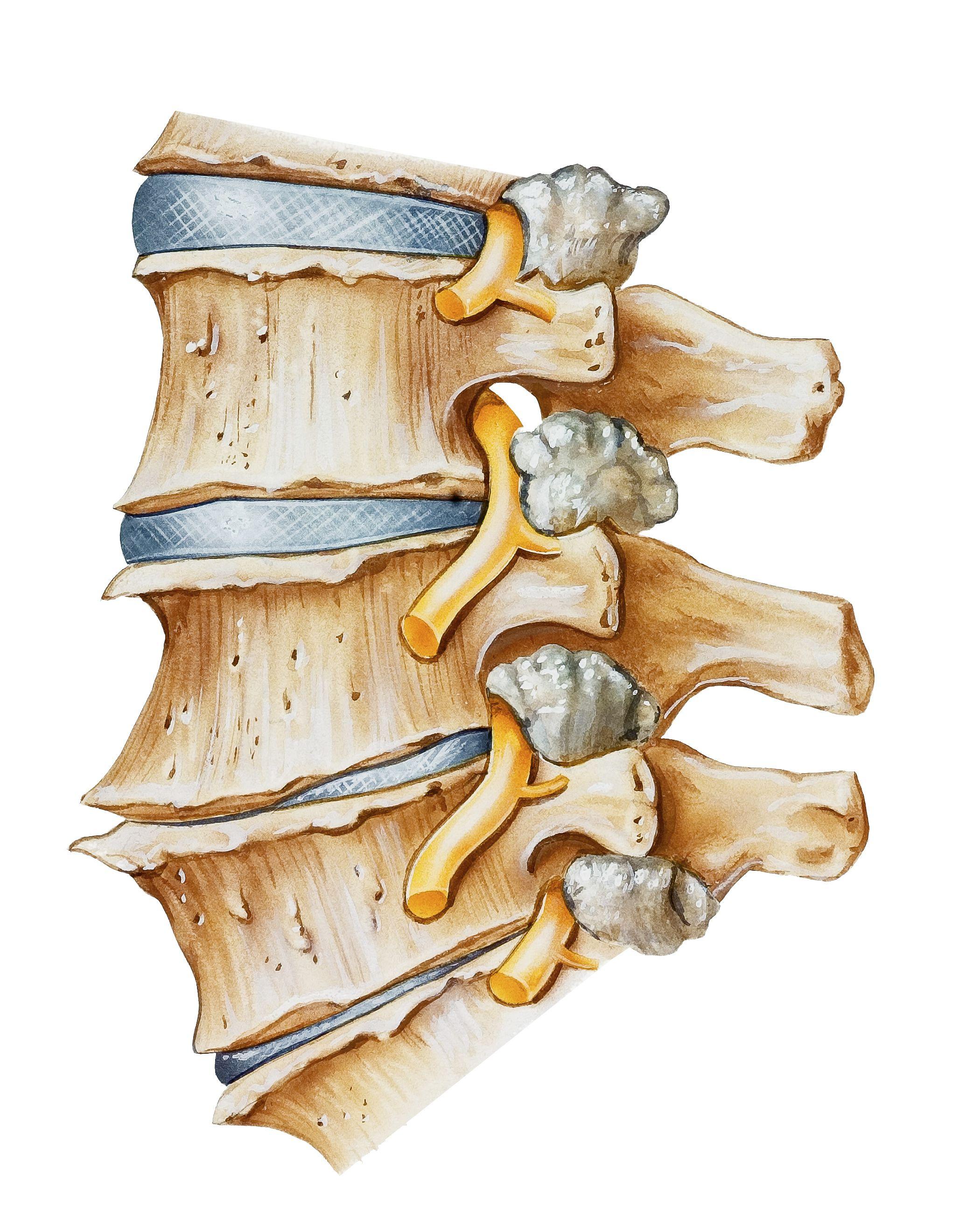 Вывих плечевого сустава в картинках растут лугах