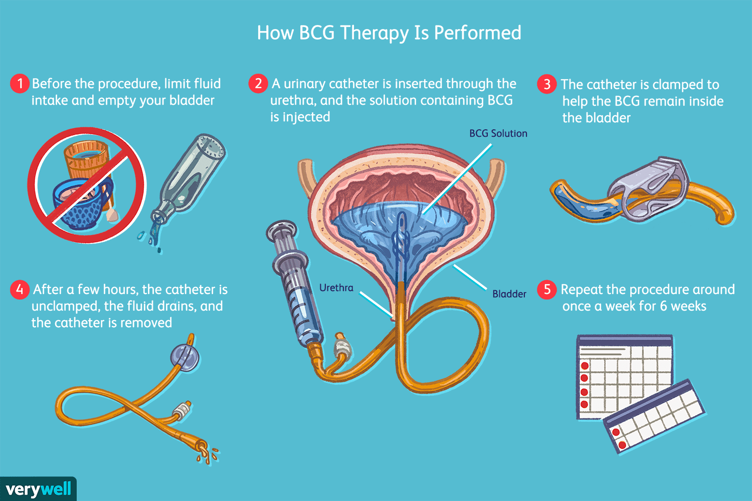 How BCG Therapy Is Performed