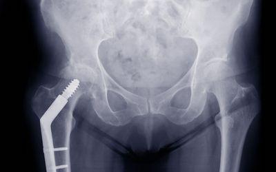 A healing hip fracture.