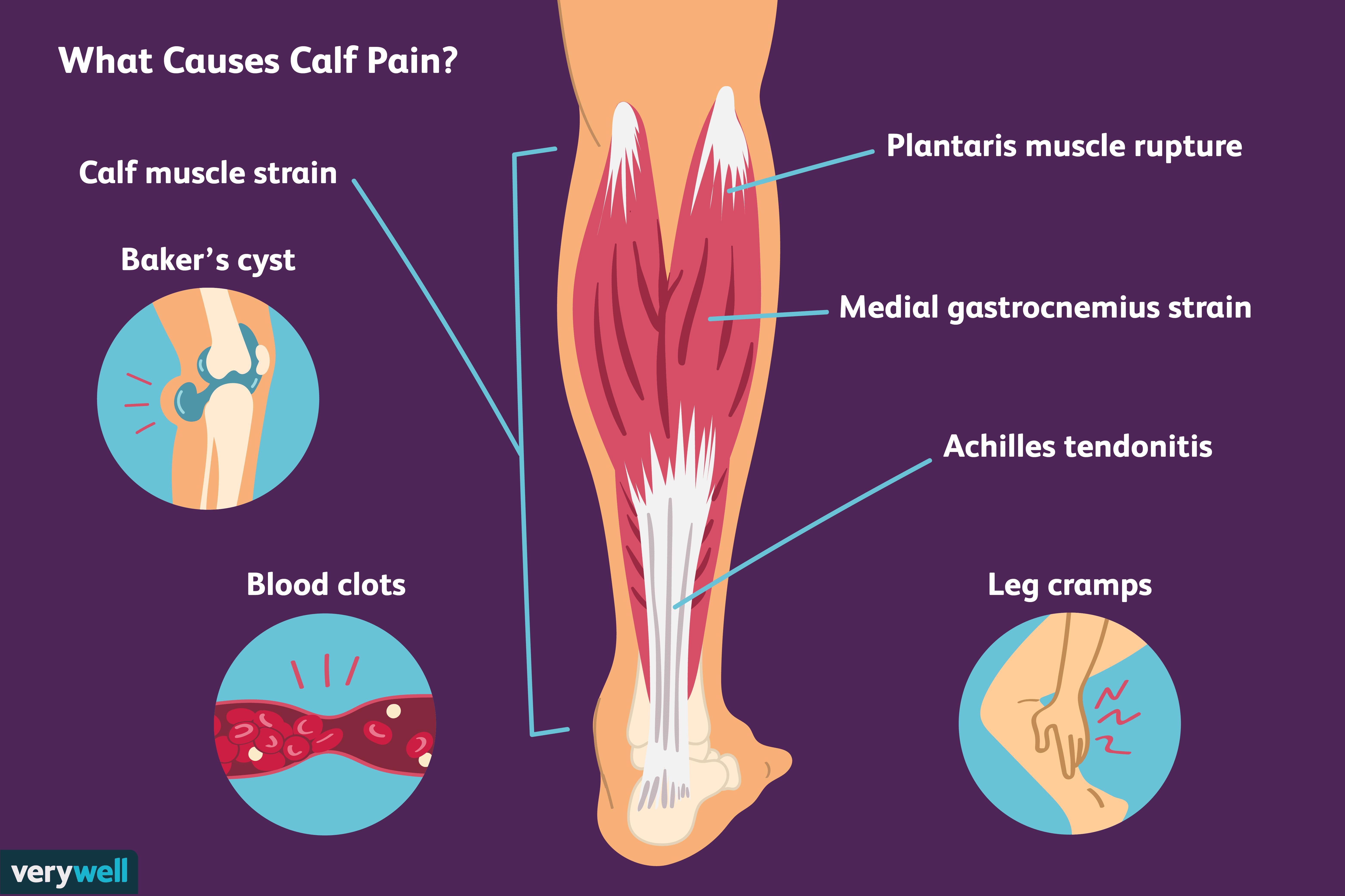 muscle pain when walking