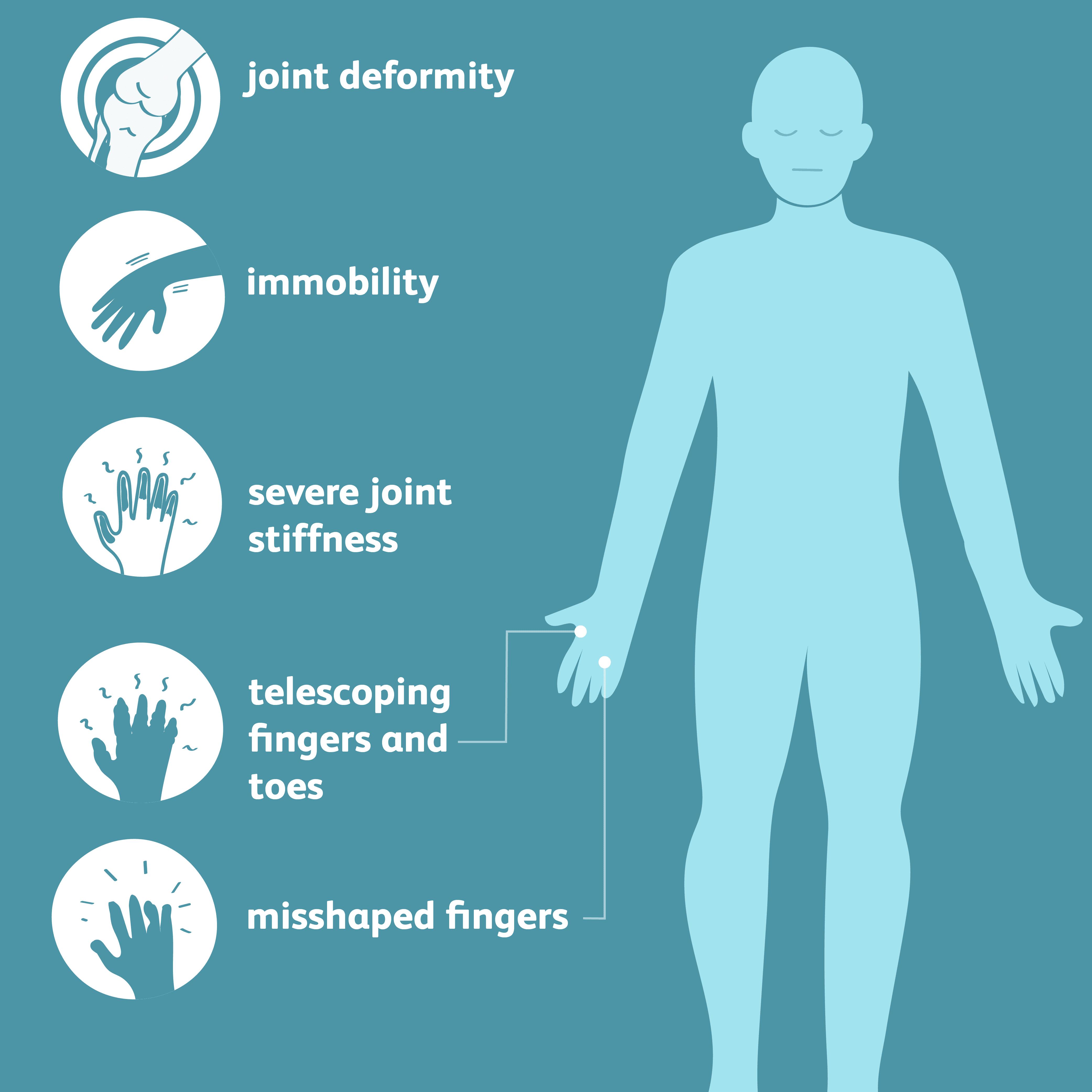 arthritis mulitans symptoms