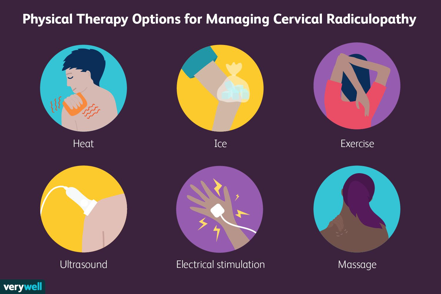 Physical Therapy Options for Managing Cervical Radiculopathy