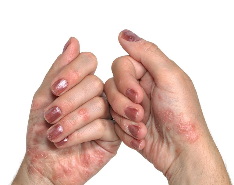Psoriasis lesions on hands.