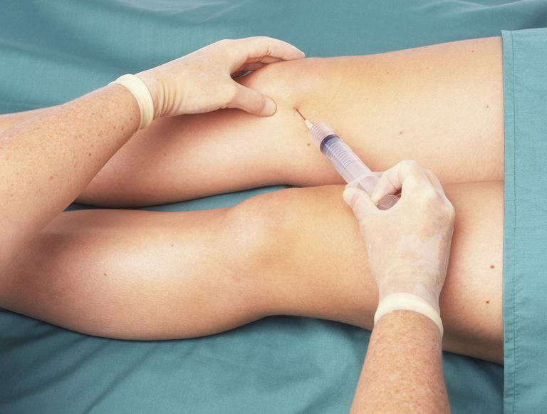 Surgeon performing knee joint aspiration (arthrocentesis) on a patient