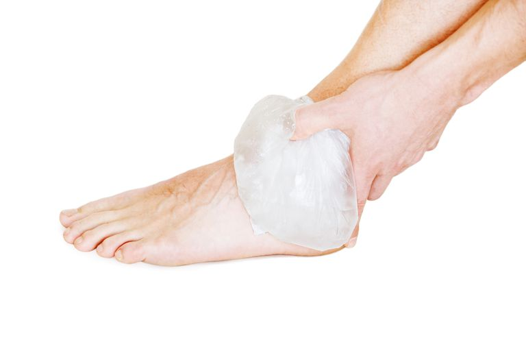 Image result for ice sprained ankle