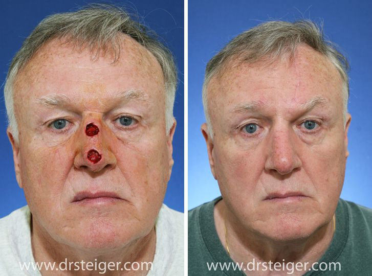 Pictures Of Skin Cancer Reconstruction
