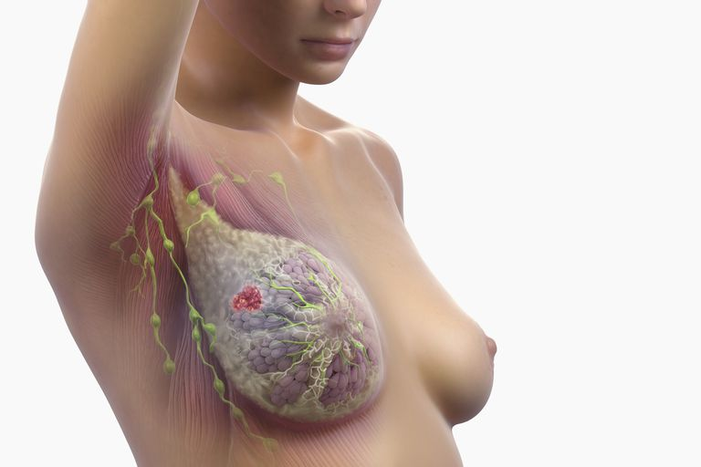 Front view of female breast anatomy with a lump present