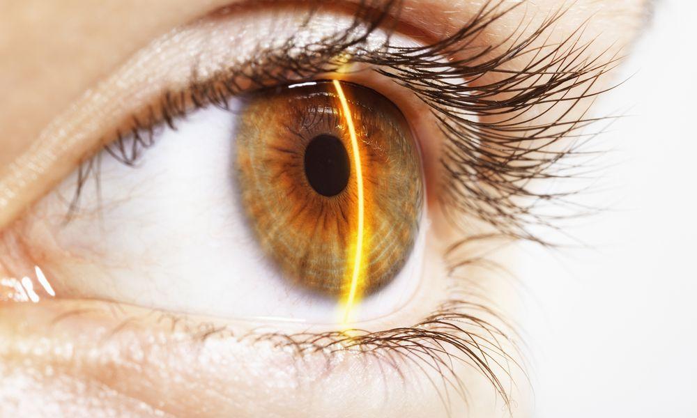 a hazel eye reflecting the beam of a laser scanner