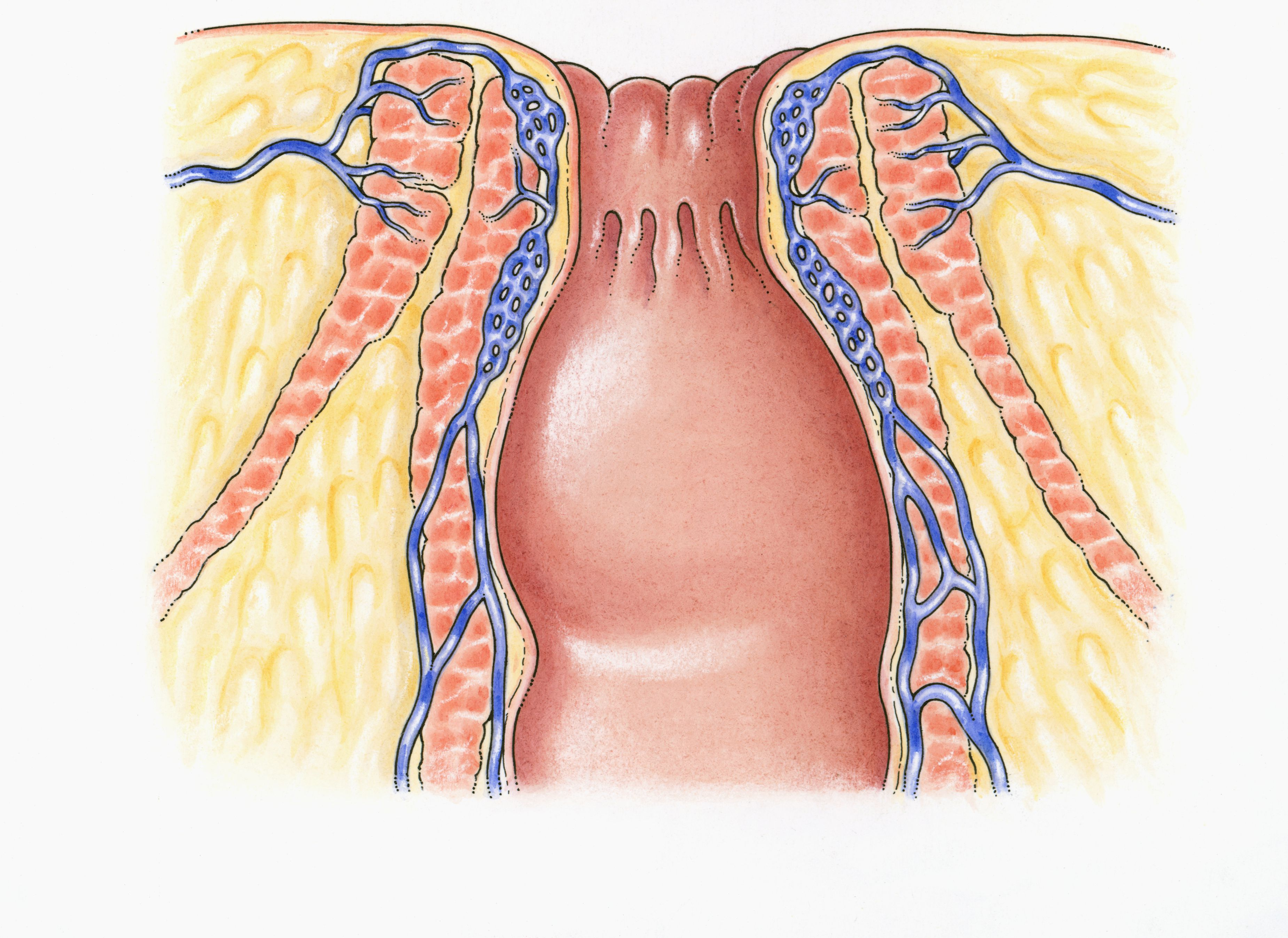 inflammation area anal Photos in