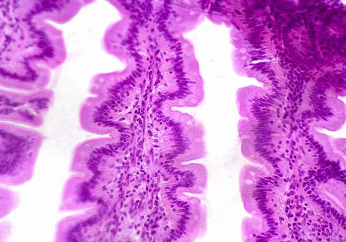 Small Intestine Jejunum section. LM