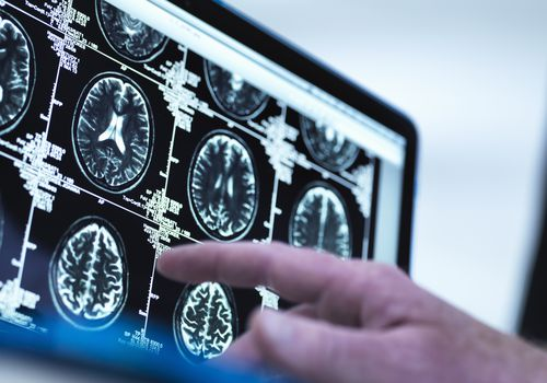 Doctor's finger pointing at brain MRI study