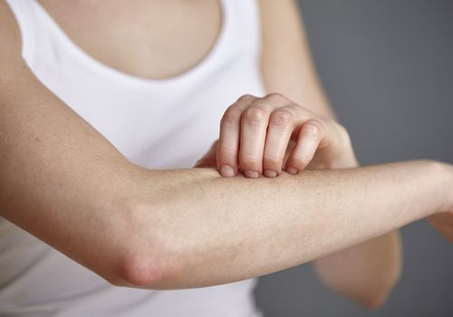 young woman scratching her forearm with fingers