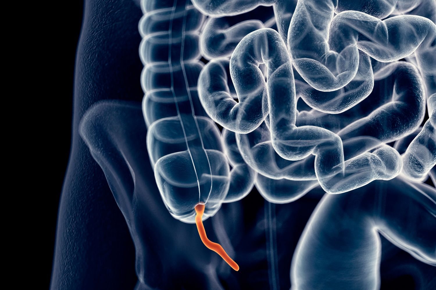 Appendix Pain Causes Treatment And When To See A Doctor