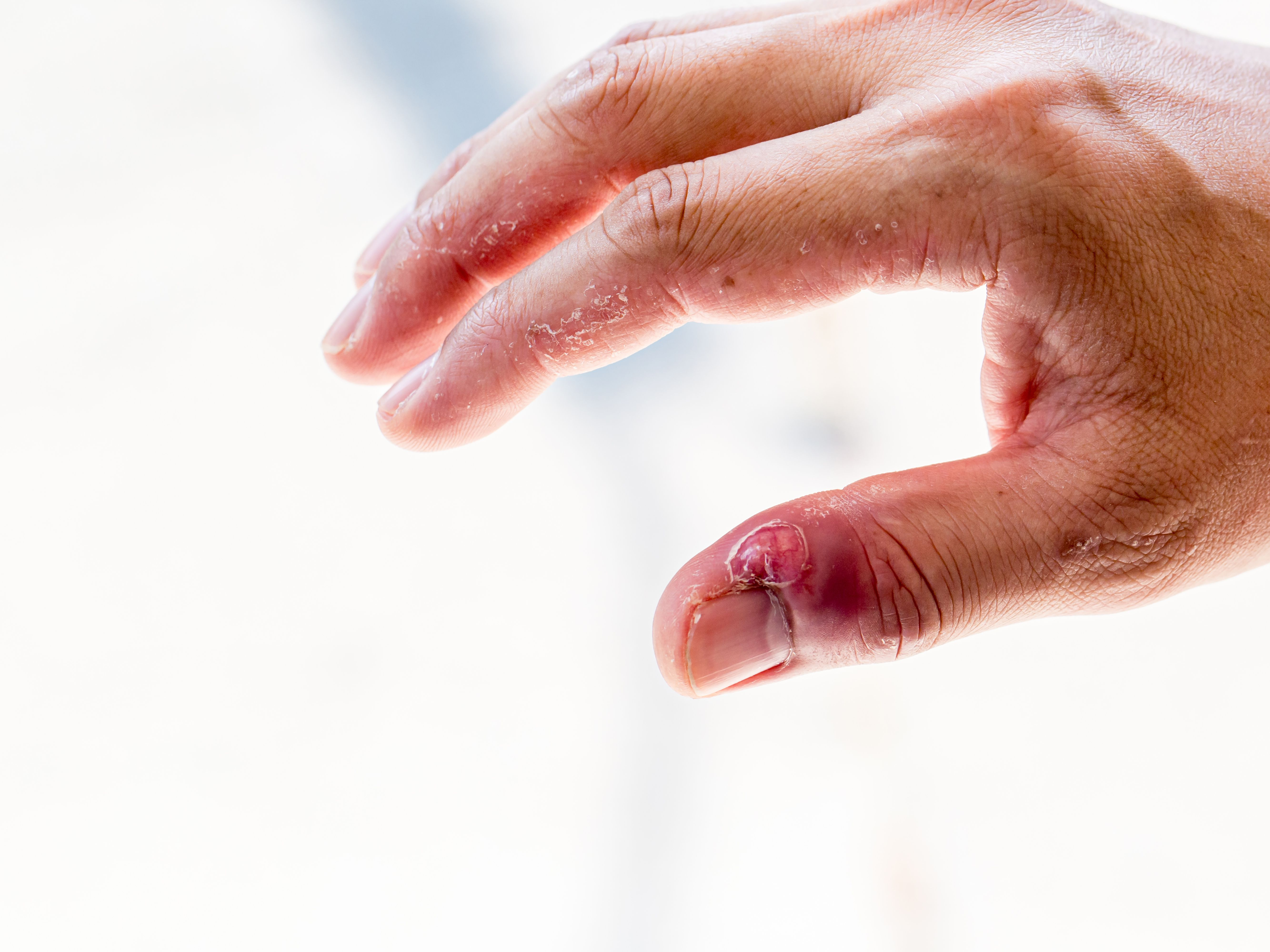 Skin Infection Around Fingernails and Toenails