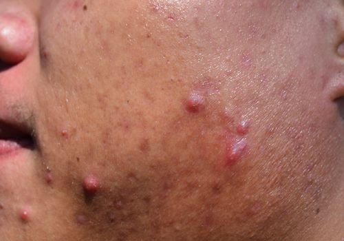 close up of man with acne