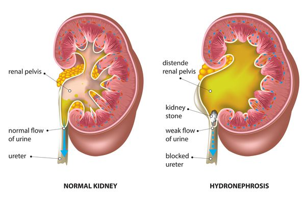 Hydronephrosis or Swollen Kidney