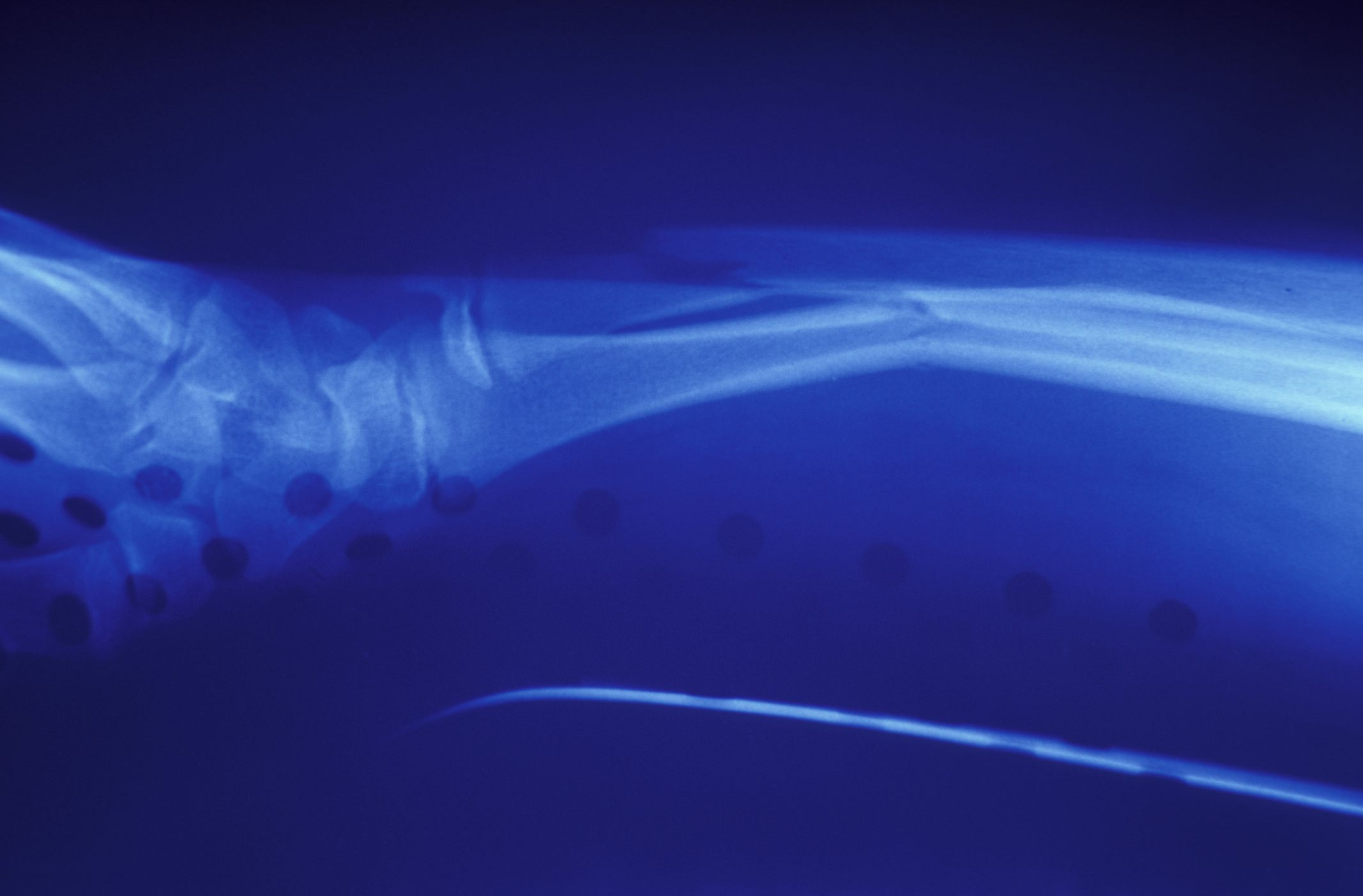 X-ray of a broken wrist