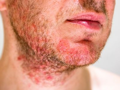 Seborrheic dermatitis in a man's beard area