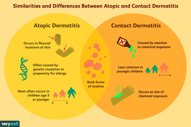 atopic dermatitis causes mit kezdjünk pikkelysömörrel otthon