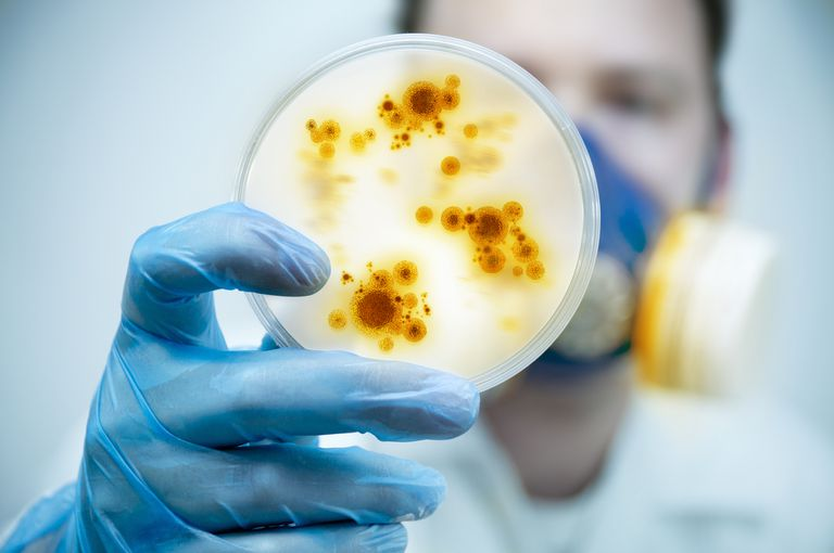 A doctor looking at a dish full of pathogens
